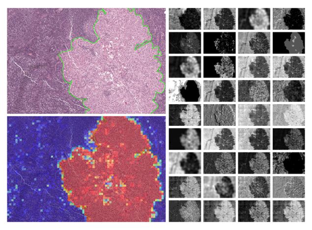 HE stained image of a breast cancer metastasis used by the machine learning model
